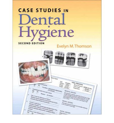 case studies in dental hygiene thomson This book is titled case studies in dental hygiene by evelyn m thomson and is nearly identical to the more currently released editions such as isbn 0132913089 or isbn.