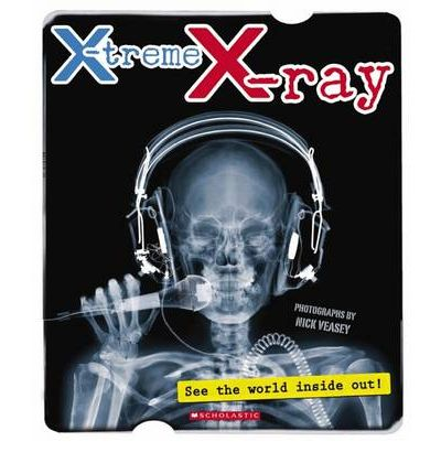 X-Treme X-Ray : See the World Inside Out!