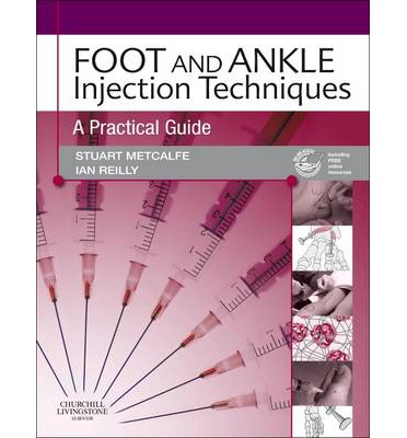 Foot and Ankle Injection Techniques: A Practical Guide