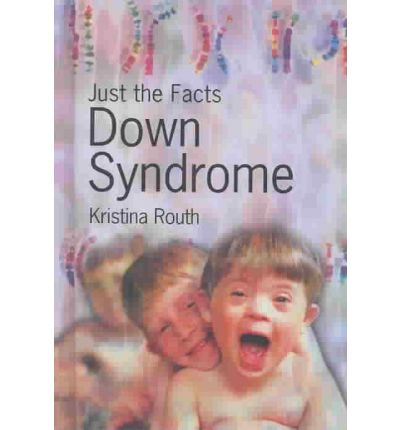 an overview of the down syndrome Overview of down syndrome as a medical condition including introduction, prevalence, prognosis, profile, symptoms, diagnosis, misdiagnosis, and treatment.