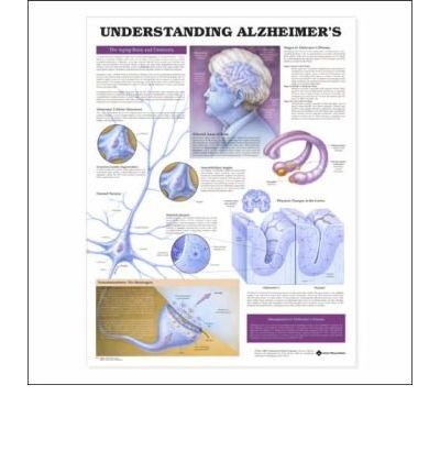 Download gratuito di libri francesi in formato pdf Understanding Alzheimers Anatomical Chart PDF ePub MOBI by Anatomical Chart Company"