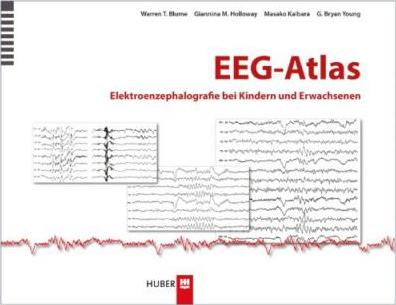 adult atlas electroencephalography