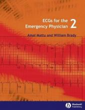 ECGs for the Emergency Physician: Level 2