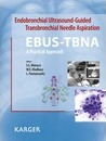 Endobronchial Ultrasound-Guided Transbronchial Needle Aspiration (EBUS-TBNA): A Practical Approach
